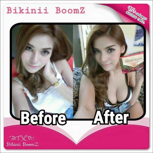 Bikinii Boomz