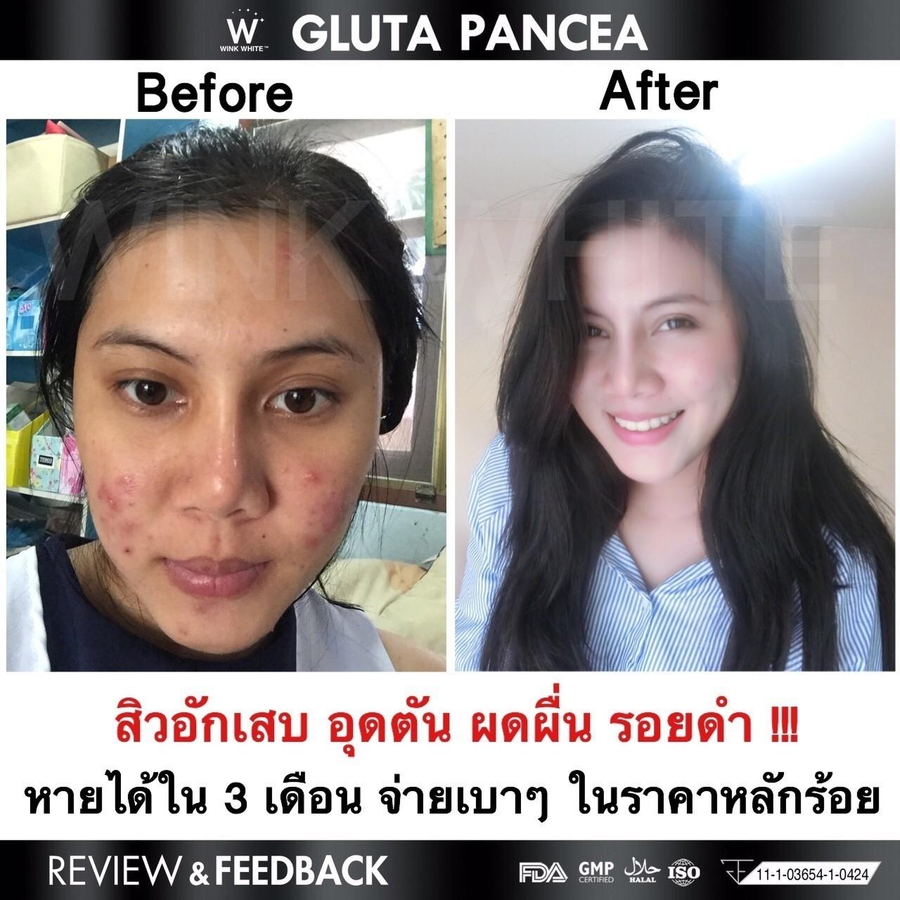 Gluta Pancea BampV