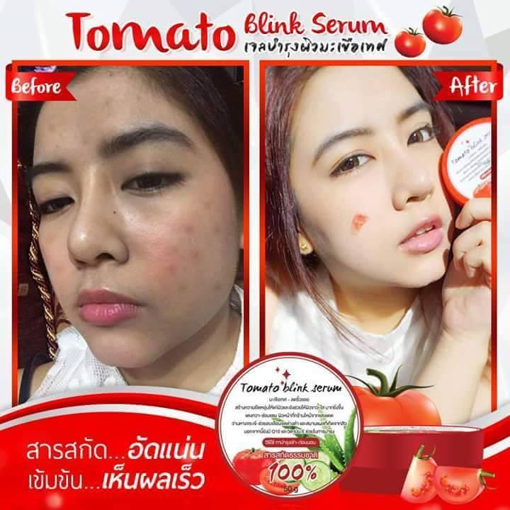 Tomato Blink Serum7