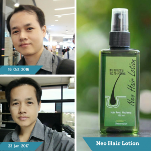 Neo Hair Lotion by Green Wealth12