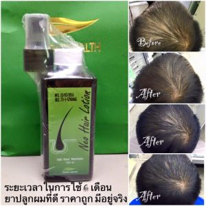 Neo Hair Lotion by Green Wealth21
