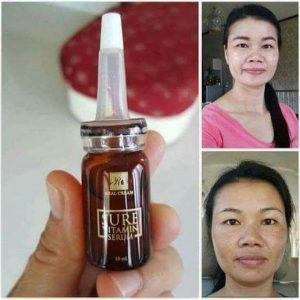 Sure Vitamin Serum by Real Cream17