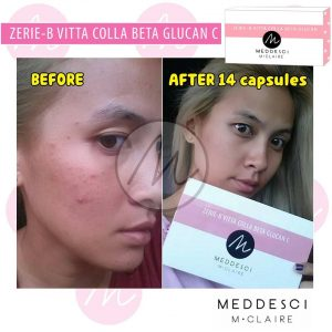 Zerie-B Vitta Colla Beta Glucan C by Meddesci M Claire17