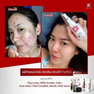 White Booster Mask by Pcare Skin Care15