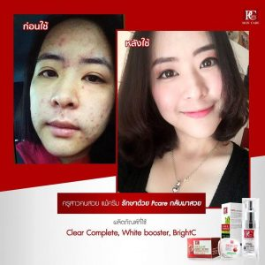 White Booster Mask by Pcare Skin Care16