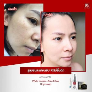 White Booster Mask by Pcare Skin Care17