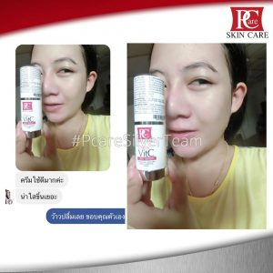 Cherry VitC plus serum by Pcare Skin Care8
