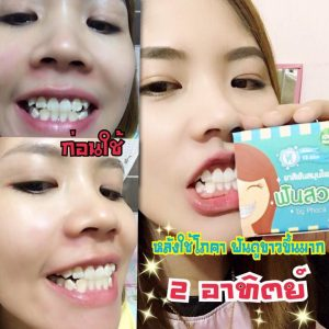 HERBAL WHITENING TOOTHPASTE by Phoca16