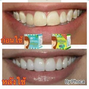 HERBAL WHITENING TOOTHPASTE by Phoca17