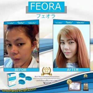 Feora dietary supplement16