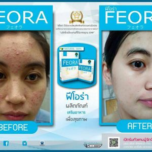 Feora dietary supplement17