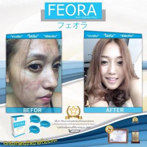 Feora dietary supplement18