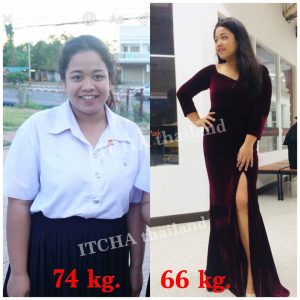 Itcha Dietary Supplement12