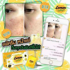 Lemon Collagen 12,000 mg.15