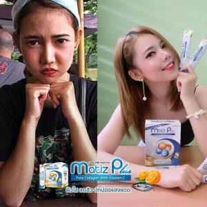 Matiz Plus Pure Collagen With Vitamin C17