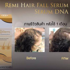Remi Hair Revitalizing Serum8