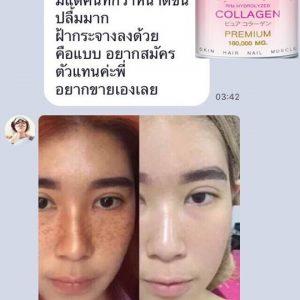 Roze' Collagen by Nara21