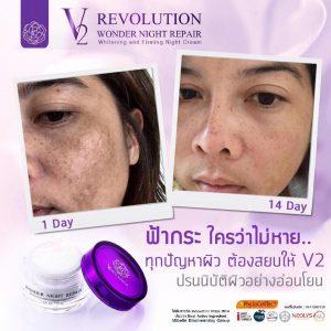 V2 Revolution Wonder Night Repair13