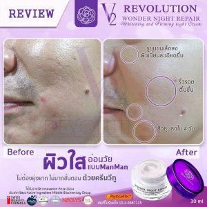 V2 Revolution Wonder Night Repair16
