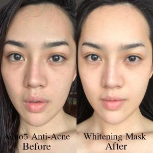 Acno5 Anti-Acne Whitening Mask11