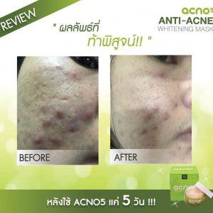 Acno5 Anti-Acne Whitening Mask12