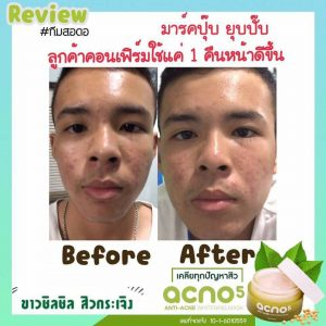Acno5 Anti-Acne Whitening Mask13