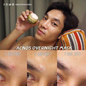 Acno5 Anti-Acne Whitening Mask21