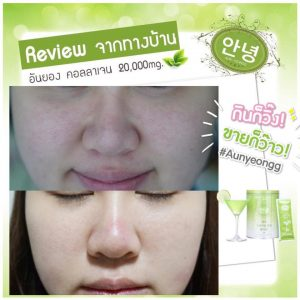 Aun-yeongg Collagen12