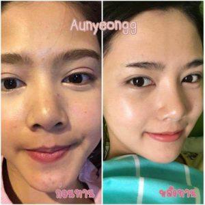 Aun-yeongg Collagen14