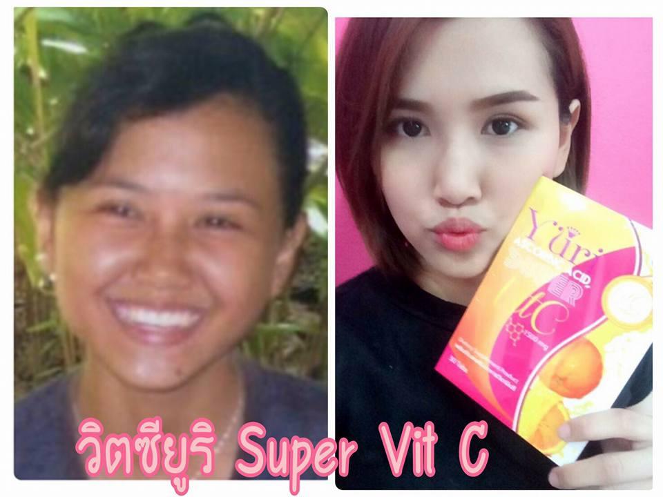 Yuri Ascorbic Acid Super Vit C
