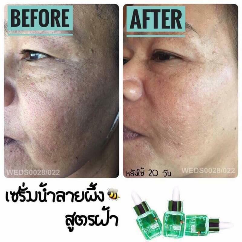 Best Natural Product For Melasma