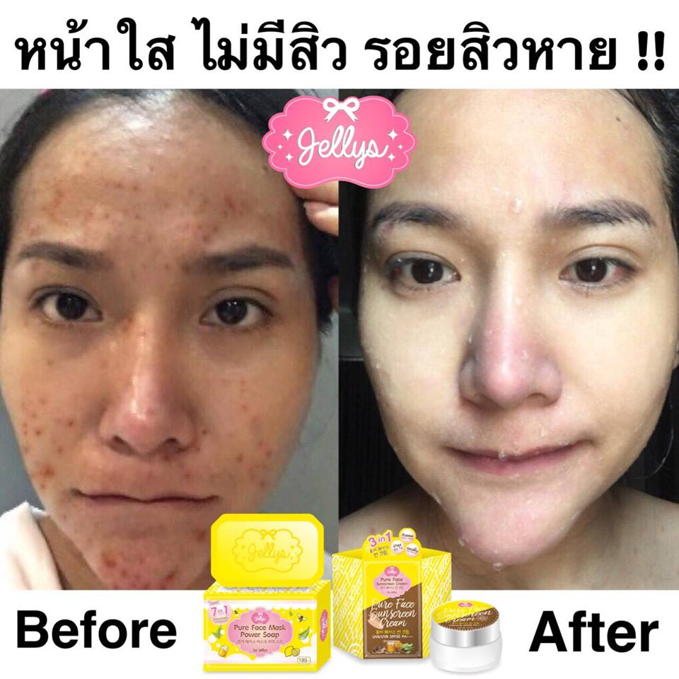 Best Natural Face Soap For Acne