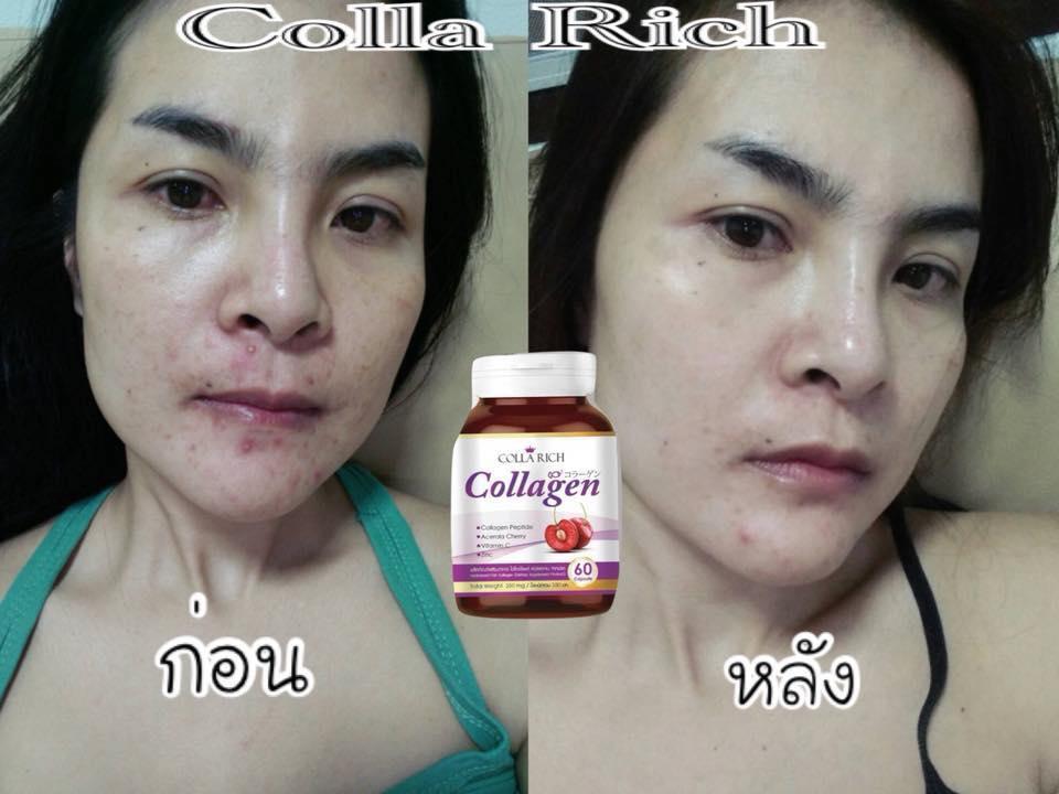 Colla Rich Collagen