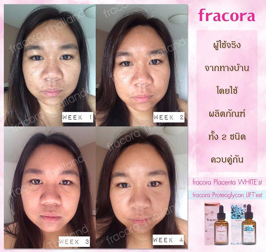 Fracora Lift'est Proteoglycan Serum
