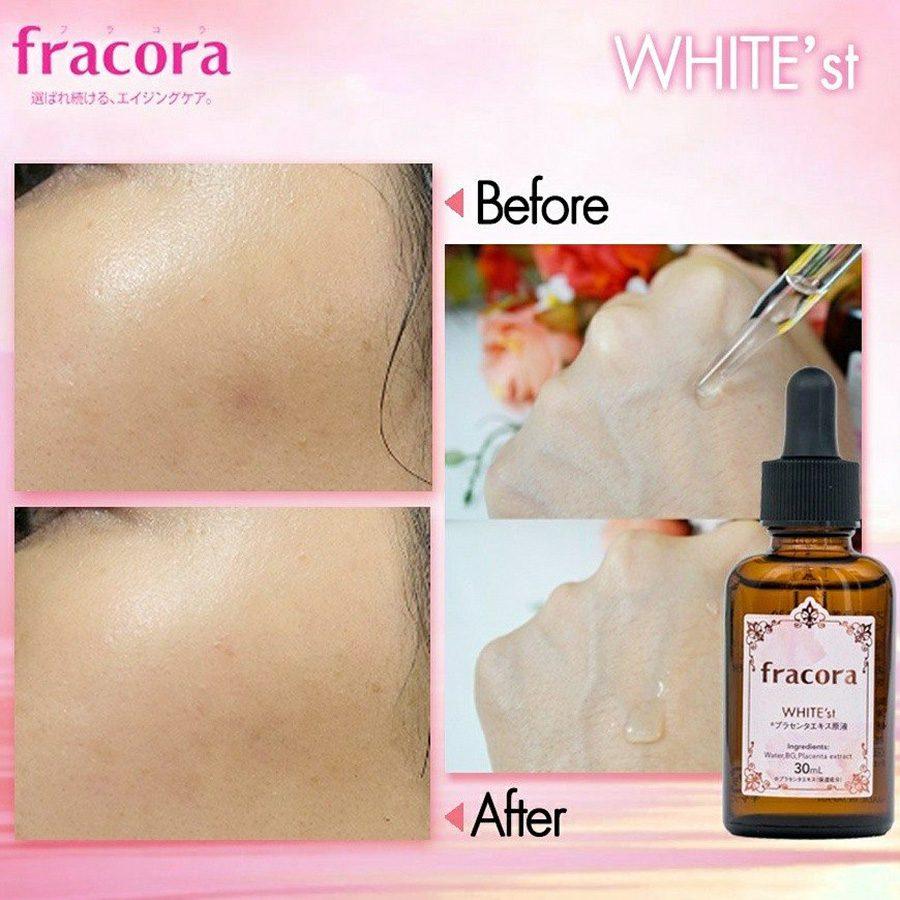 Fracora Placenta Extract Serum WHITE'st