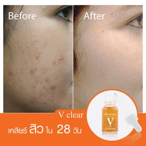Skinsista V Clear Acne Clear Booster