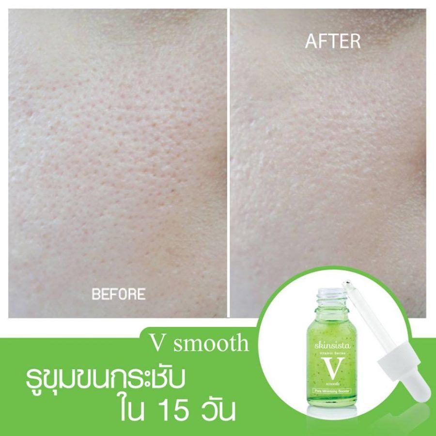 Skinsista V Smooth Pore Minimizing Booster