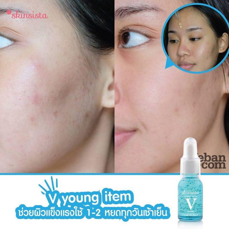Skinsista V Young Skin Booster