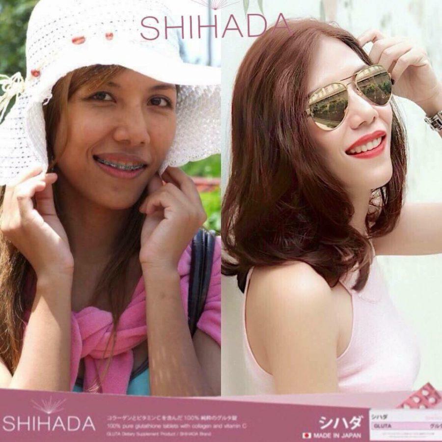 Gluta Shihada