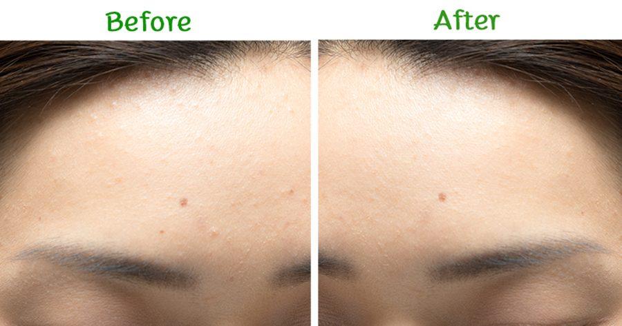 Dr.Somchai Acne Spot Touch Gel